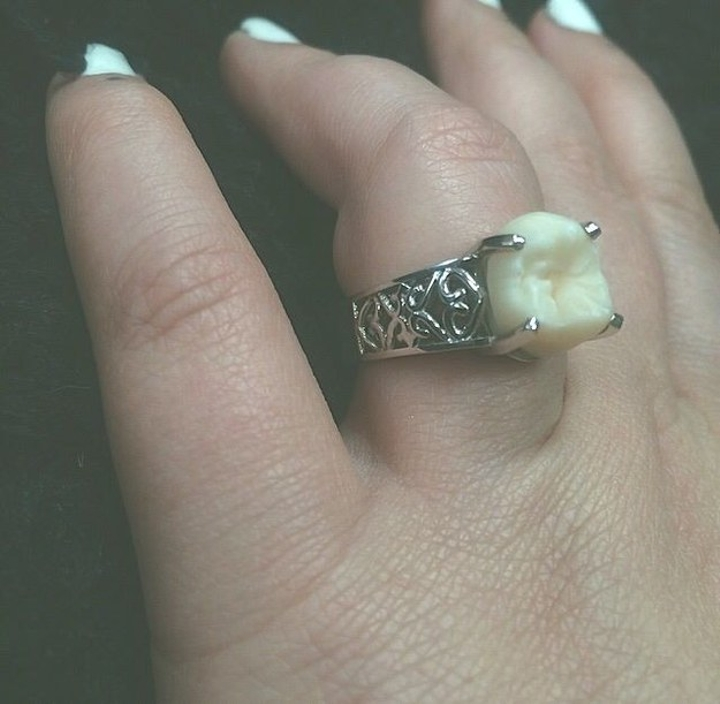 engagement ring tooth