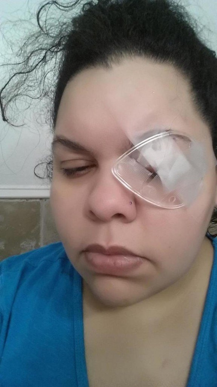glitter cause eye loss