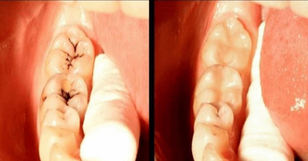 how to treat cavities naturally