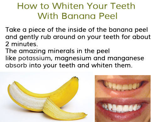 teeth whitening tricks 11
