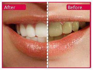 teeth whitening tricks 13