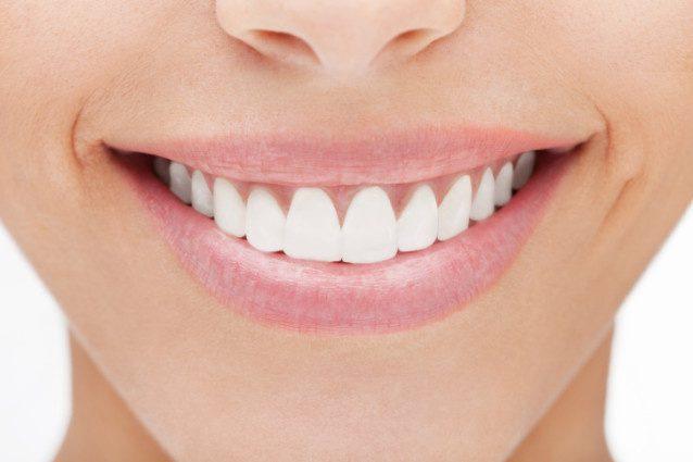 teeth whitening tricks 16