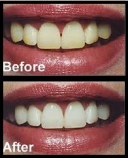 teeth whitening tricks 17