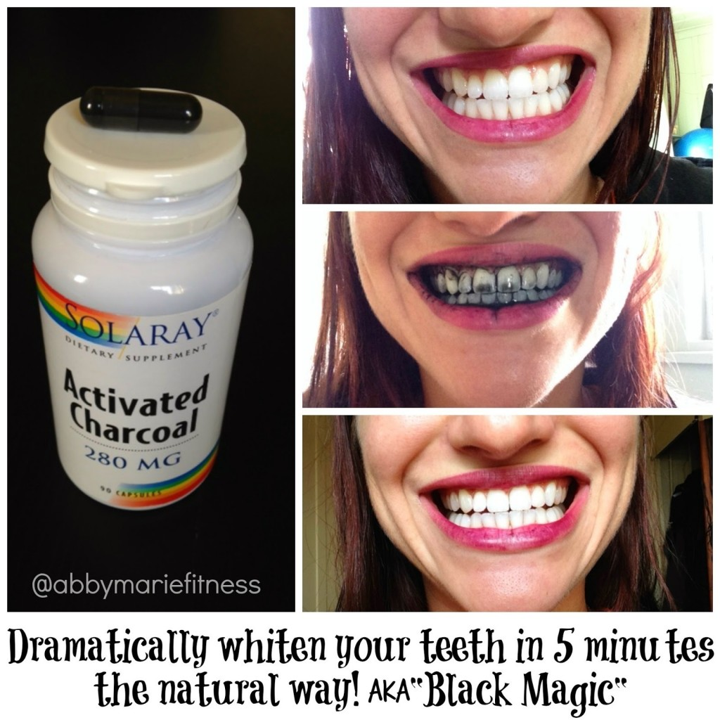 teeth whitening tricks 18