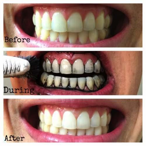 teeth whitening tricks 7