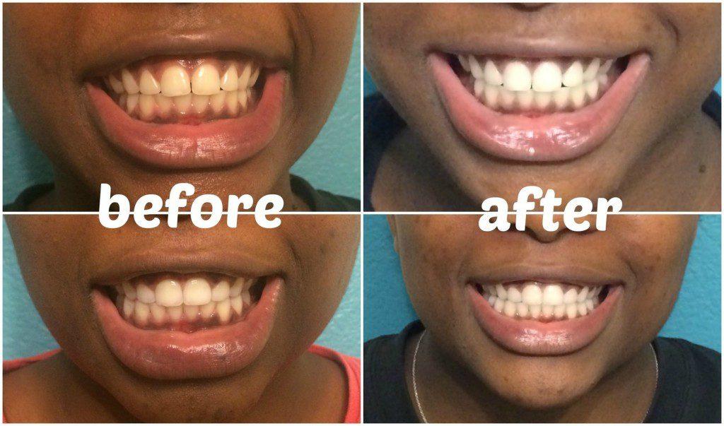 teeth whitening tricks 9