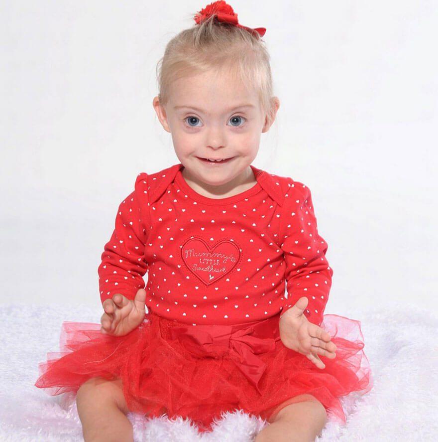 little girl down syndrome model