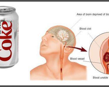 diet soda causes dementia strokes