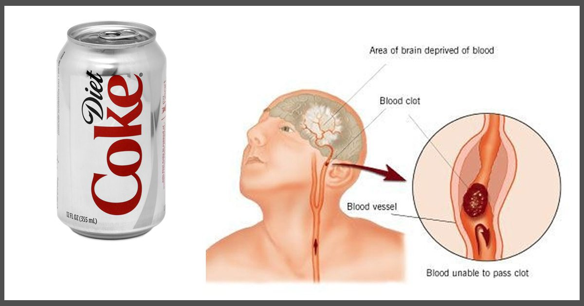 what is in diet soda that causes stroke