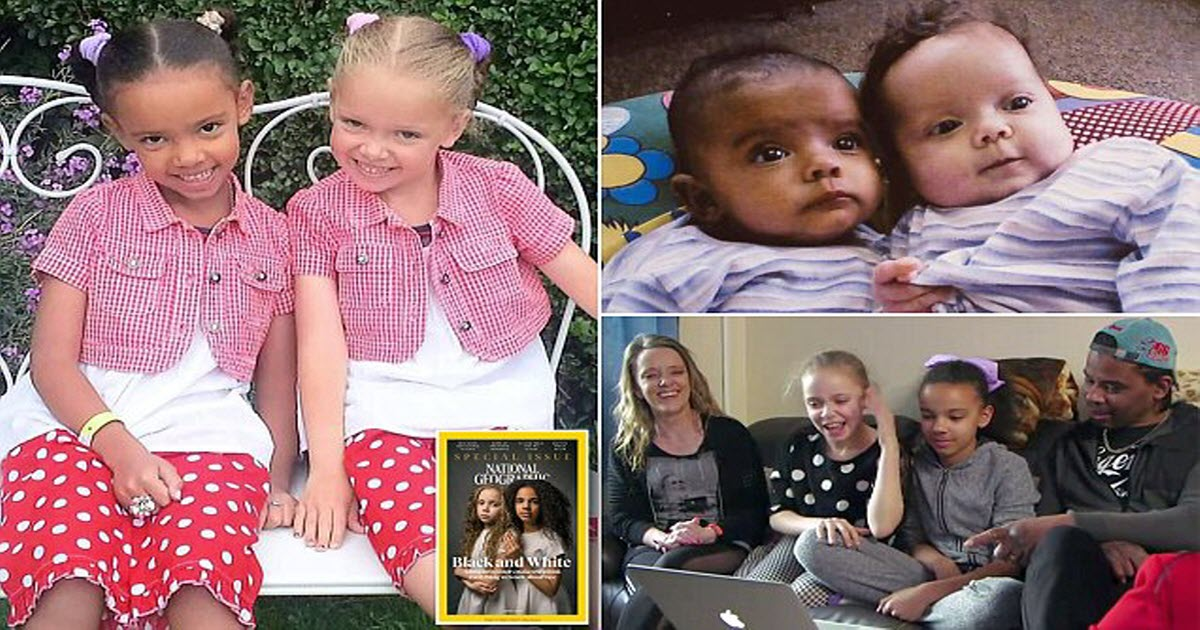 Biracial Twins Reveal What It S Like Growing Up One Black
