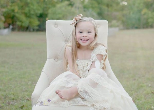 julie willson downs syndrome