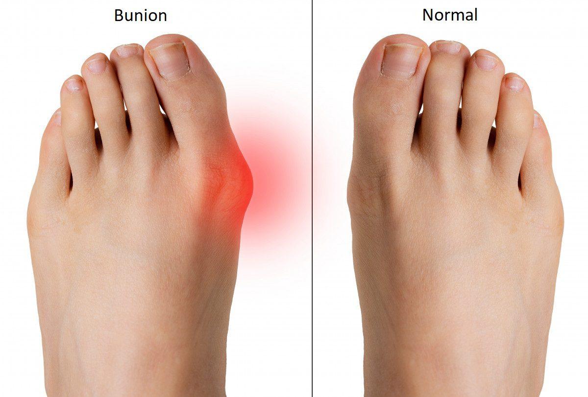 bunion treatment