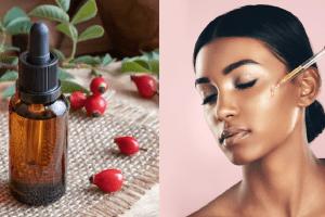 rosehip oil for hair