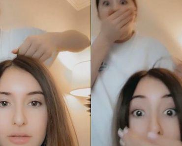 scalp popping
